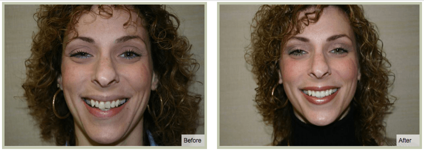 Smile Makeover Plan