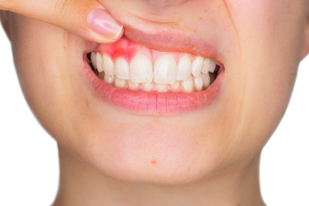 Gum Disease And Your Systemic Health By Dr Maria Rhode